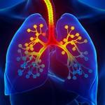 Ūminis bronchitas: neskubėkime jo gydyti antibiotikais