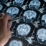 Didžiausias Alzheimerio pavojus – ligos simptomus laikyti natūraliais senatvės požymiais