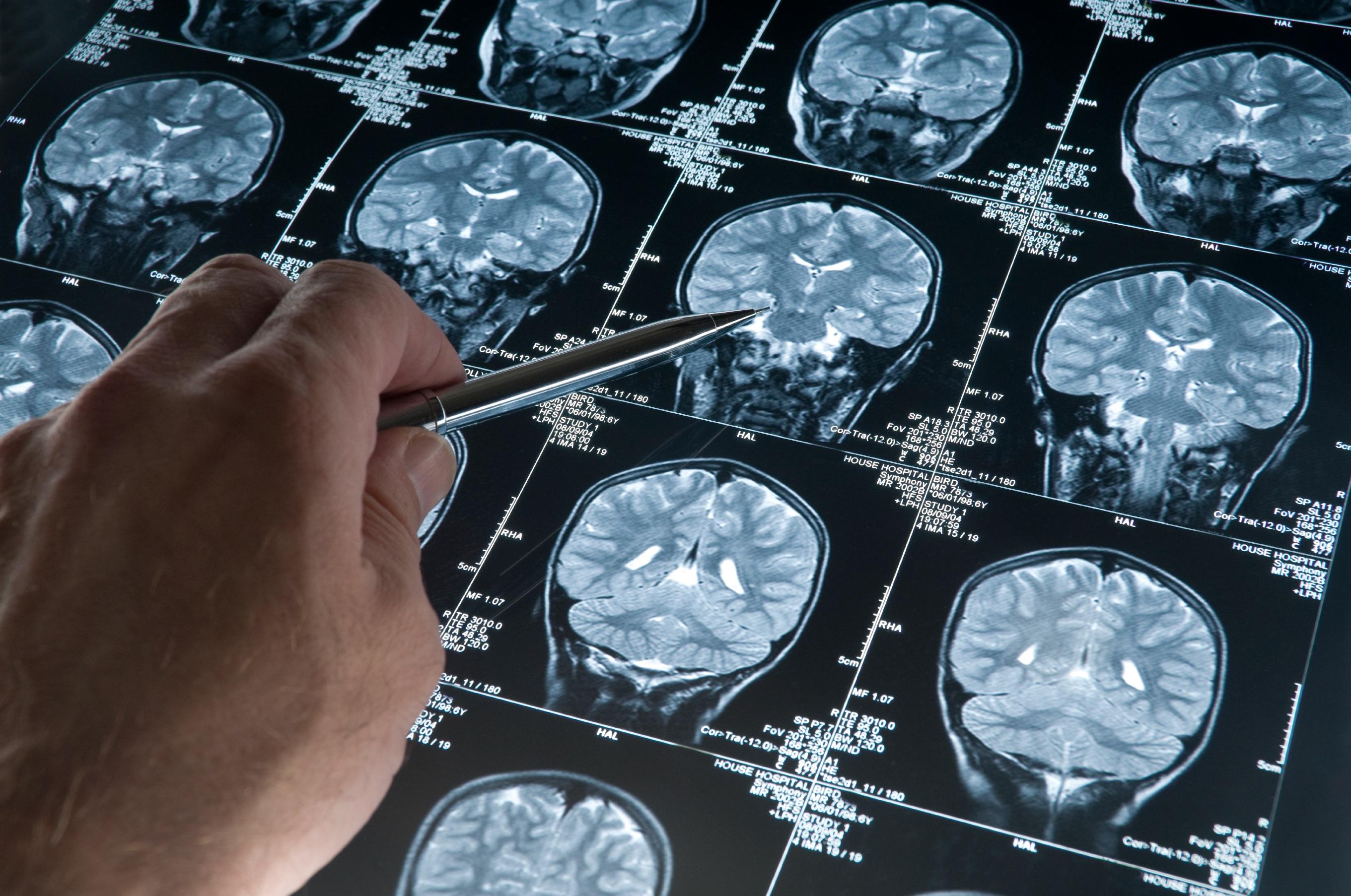Šiuo metu Jungtinėje Karalystėje kiekvienais metais silpnaprotystė, arba demencija, diagnozuojama 850-čiai tūkst. žmonių. (wikipedia.org nuotr.)