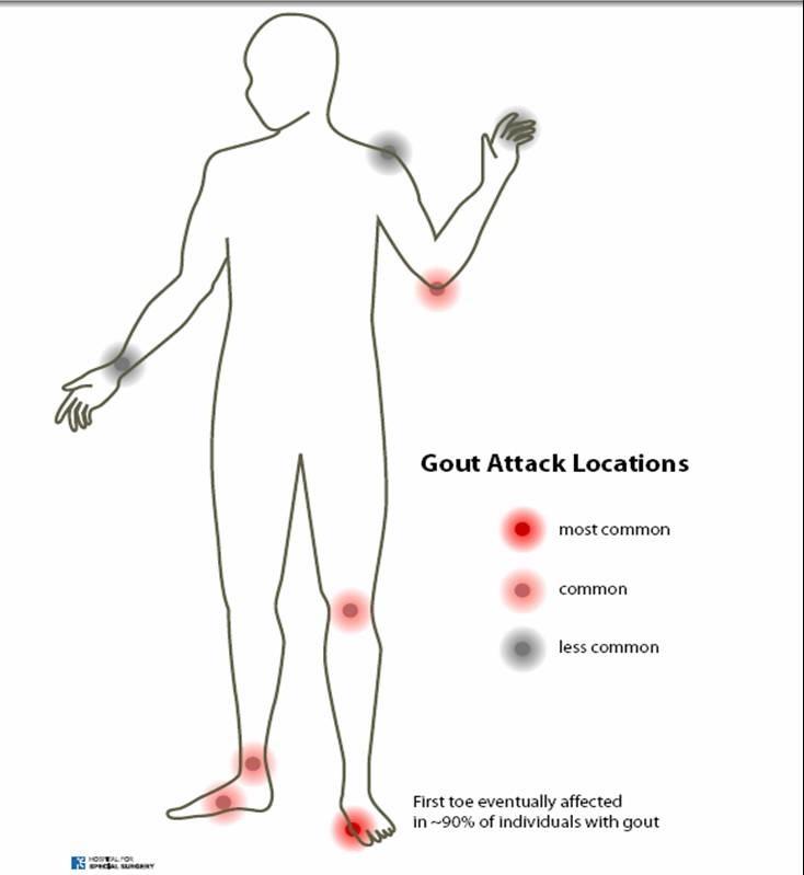 Dažniausiai podagros pažeidžiami sąnariai. (arthritiskerala.com nuotr.)