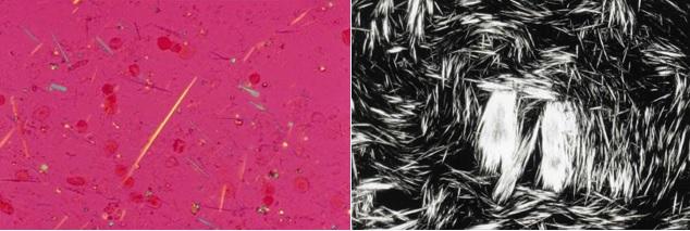 Mikroskopuojant sinovinį skystį iš pažeistojo sąnario yra matomi adatų pavidalo uratų kristalai. (medscapestatic.com nuotr.)