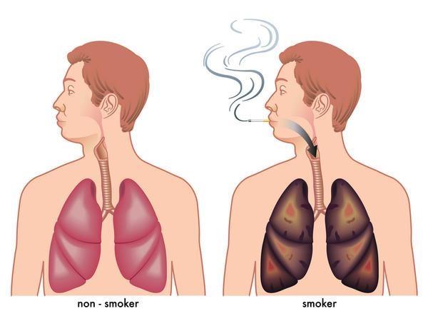 Pagrindinis plaučių vėžį sukeliantis veiksnys yra tabako rūkymas. Dešinėje - nerūkančio žmogaus plaučiai, kairėje - rūkančio. (wikipedia.org nuotr.)