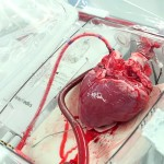 Kaip vyktų neplakančios širdies transplantacija Lietuvoje?