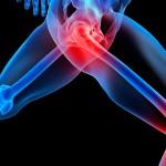 Kankina sąnarių skausmas? 5 būdai sau padėti