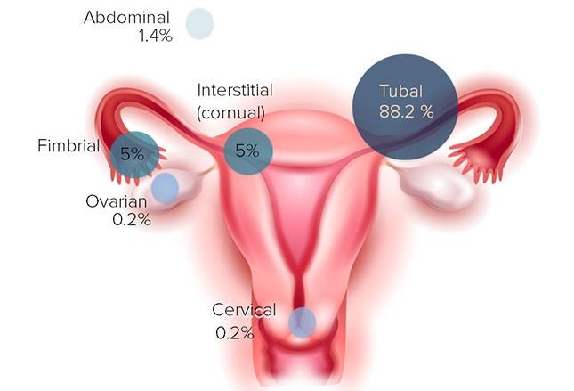 Dažniausiai pasitaikančios ektopinio nėštumo lokalizacijos. (medscape.com nuotr.)