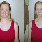 Kušingo sindromas: kokį poveikį organizmui turi steroidinių hormonų perteklius?