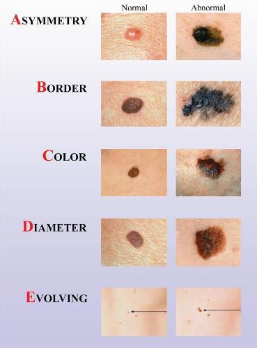 Melanoma-kaip-atpazinti-pavojingus-apgamus