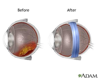 Skleros išlenkimo operacija. Silikono juostelė sumažina akies obuolio perimetrą ir apsaugo nuo tolesnio stiklakūnio tempimo bei atšokos pasikartojimo. (pennstatehershey.adam.com nuotr.)