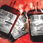 Reta hemofilijos forma serga 11 lietuvių: medikai vienam jų grąžino galimybę judėti