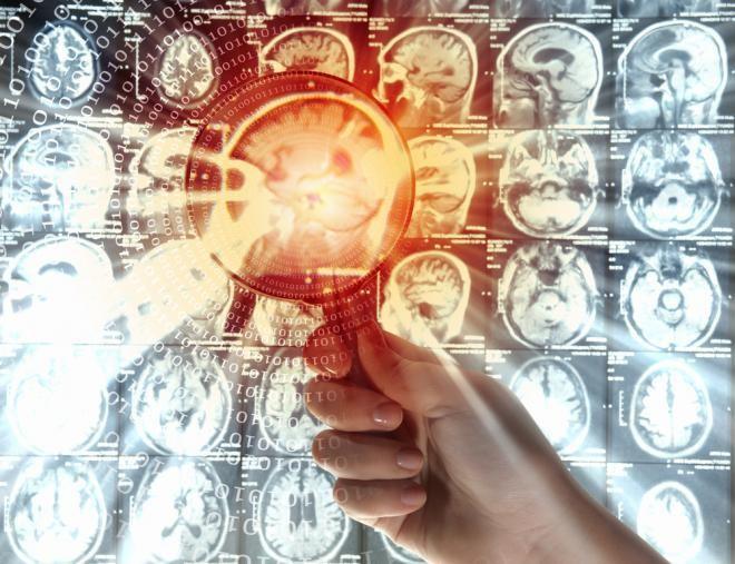 Modifikuotas poliomielito virusas panaudotas piktybinių smegenų navikų gydymui. (medicaldaily.com nuotr.)
