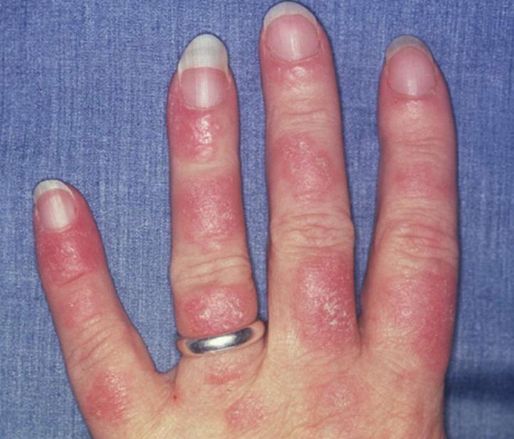 ...2 – rankų bėrimas atsiradęs dėl padidėjusio fotosensityvumo. (medscapestatic.com nuotr.)