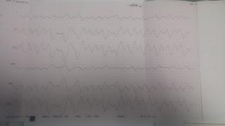 Pacientės EKG