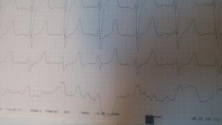 Netikroji J (Osborn) banga, kurią pavyko užfiksuoti ambulatorijoje.