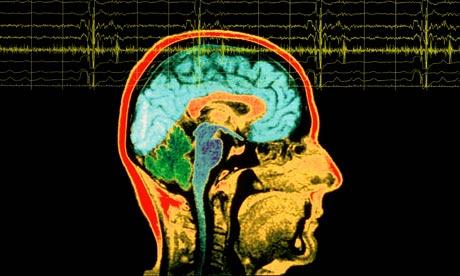 Elektroencefalografija – metodas, kuriuo matuojama smegenų biosrovė, fiksuojant elektrinius virpesius. Iš gautų signalų sprendžiama apie smegenų aktyvumą bei sąmonės būklę. (Asociatyvi nuotr.)