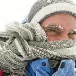 GYDYTOJO UŽRAŠAI. Apie hipotermijos priežastis ir gaivinimo sunkumus