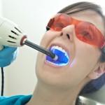 Balinatės dantis? Sužinokite, ar nerizikuojate savo sveikata