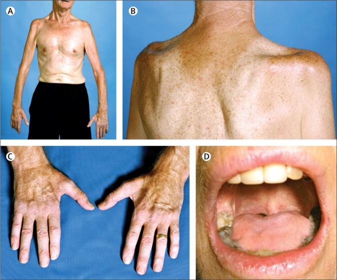 """Raumenų atrofija sergant šonine amiotrofine skleroze. A – dėl simetriškos proksimalinių rankų raumenų atrofijos pacientas negali pakleti rankų aukštyn prieš gravitacijos jėgą. Tai kartais vadinama """"žmogaus statinėje"""" simptomu. B – įdubimai virš ir žemiau mentės dyglio taip pat rodo ryškią raumenų atrofiją. C – nesimetriška plaštakos raumenų atrofija yra vienas tipiškų amiotrofinės sklerozės požymių. D – bulbarinė ligos forma pasireiškia liežuvio raumenų atrofija. (thelancet.com nuotr.)"""
