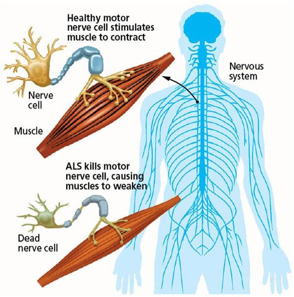 Šoninė amiotrofinė sklerozė sukelia už raumenų inervaciją atsakingų nervinių ląstelių degeneraciją, todėl silpsta raumenys ir sutrinka motorinės funkcijos. (eternessehyd.com nuotr.)