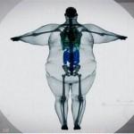Dietologė: kai kurių genetinių duomenų pakeisti neįmanoma