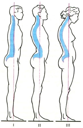 Fiziologinių stuburo linkių įvairovė: I – išlyginti stuburo linkiai ir labai tiesi laikysena; II – ryškūs stuburo linkiai; III – ryški krūtininė kifozė ir susikūprinusi laikysena. (medicalency.com nuotr.)