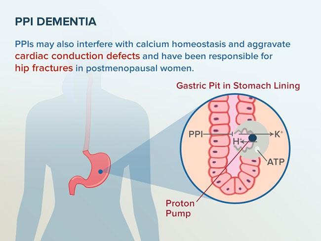 Naujame tyrime protonų pompos inhibitoriai siejami su padidėjusia demencijos rizika vyresniame amžiuje. Kiti galimi šių medikamentų pašaliniai poveikiai – širdies laidumo sutrikimai ir šlaunikaulio lūžiai pomenopauzinio amžiaus moterims. (medscape.com nuotr.