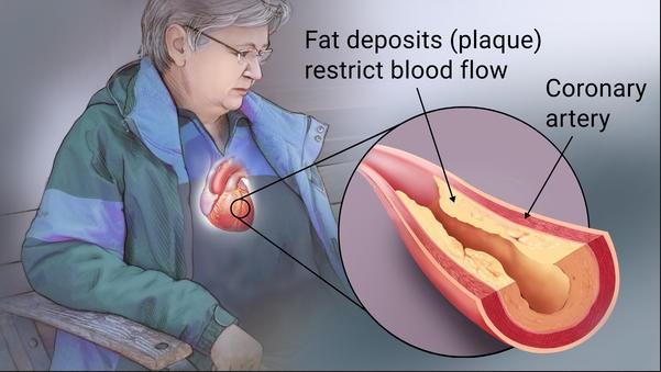 Koronarinė širdies liga pažeidžia širdį krauju aprūpinančias kraujagysles. Naujausias tyrimas atskleidžia, kad testosterono terapija galėtų mažinti šia liga sergančių vyrų riziką patirti miokardo infarktą. (gstatic.com nuotr.)
