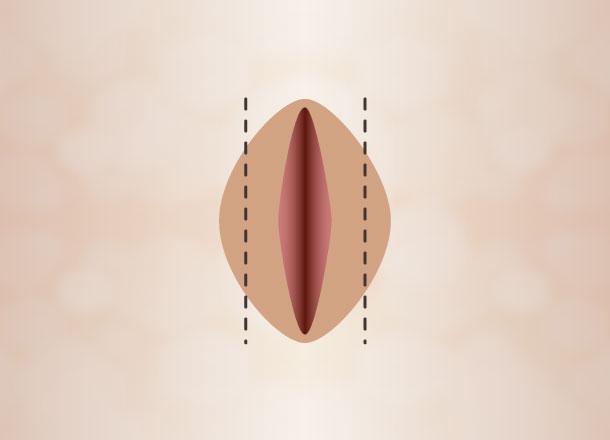 Deepitelizacijos metu pašalinamas nedidelis kiekis audinių išlaikant mažųjų lytinių lūpų kontūrą.