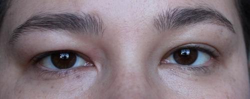 Užkritę akių vokai