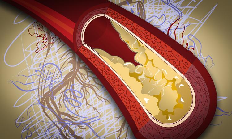 dislipidemija ir hipertenzija)