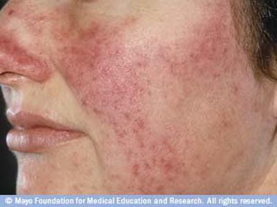 Rožinė tipiškai pasireiškia skruostų, nosies ir centrinės veido dalies paraudimu bei į aknę panašiais bėrimais, mazgeliais ar pustulėmis. Šiandien rožinė yra neišgydoma, tačiau gali būti kontroliuojama antibiotikais ar izotretinoinu. (mayoclinic.org nuotr.)
