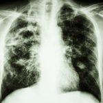 Prieš atsparią tuberkuliozę – 3 galingi preparatai už 1,5 mln. eurų ir DOTS kabinetai