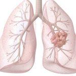 Nauja viltis išplitusiu plaučių vėžiu sergantiems pacientams