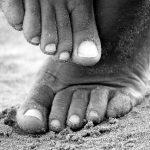 Kokia yra veiksminga plokščiapėdystės profilaktika?