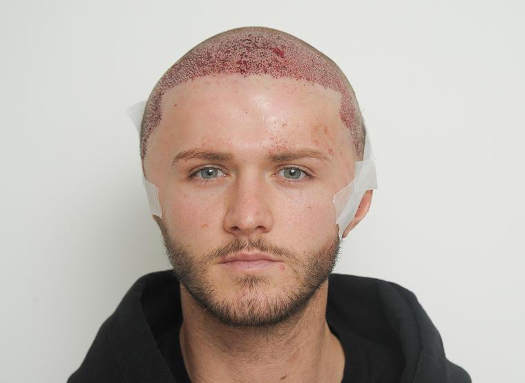 Taip atrodo pacientas po plaukų transplantacijos. (wikipedia.org nuotr.)