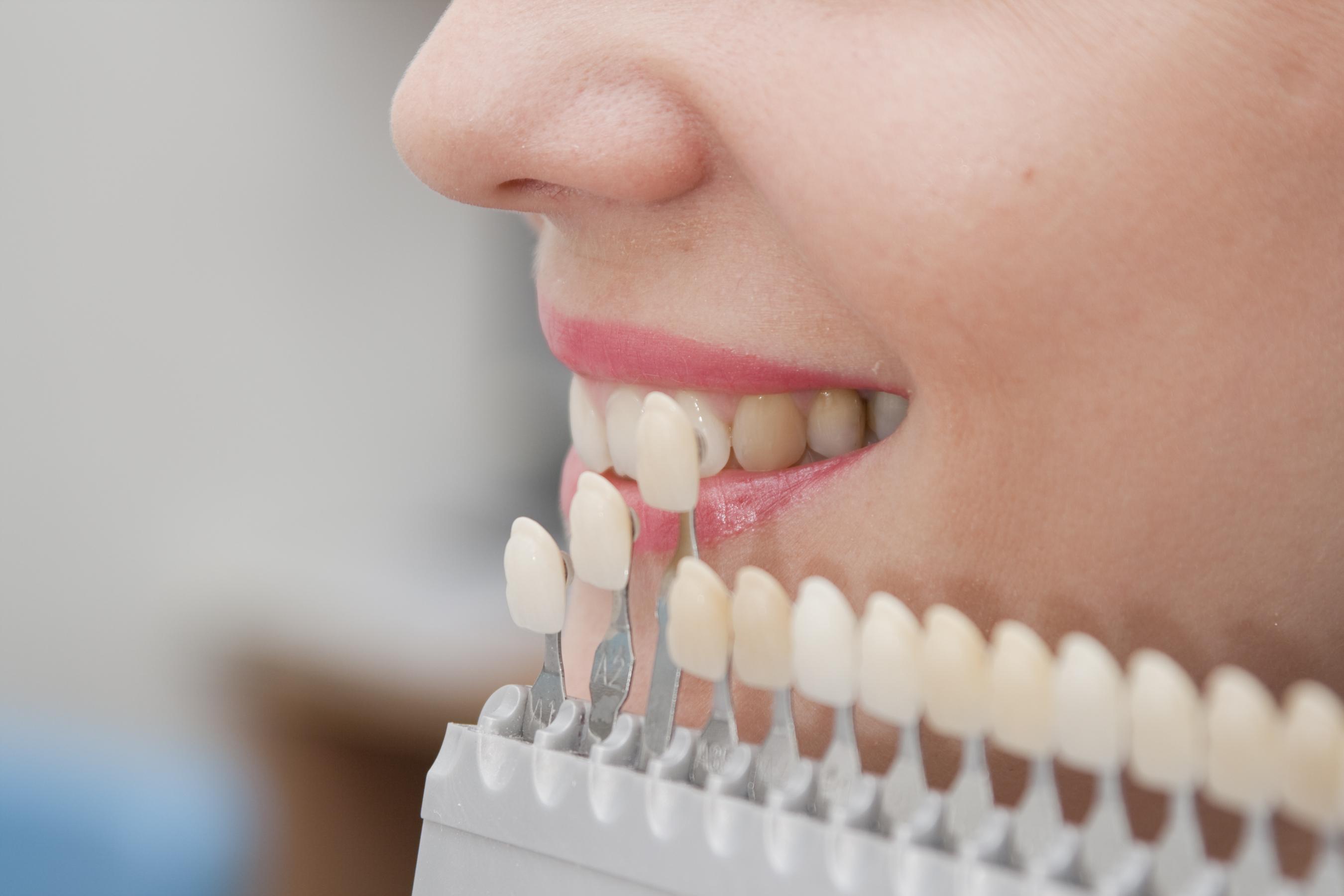 Valymo metu nepasiekiant kai kurių dantų zonų didėja tikimybė, kad jose kaupsis bakterijos ir atsiras kariesas.