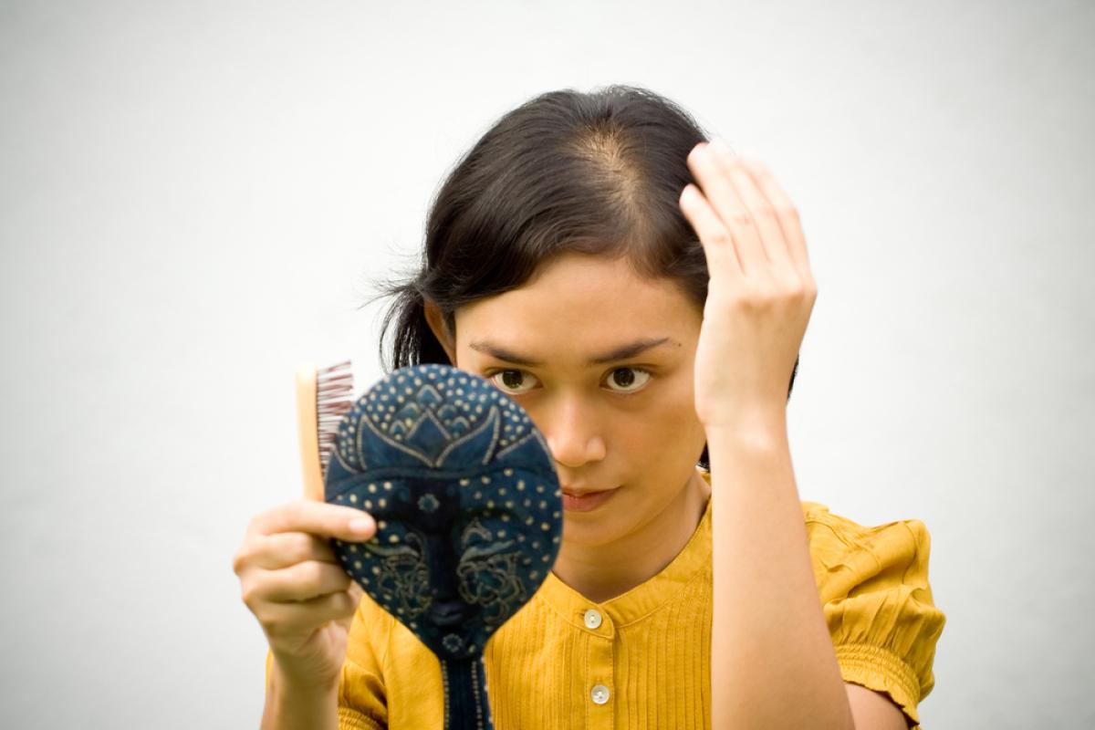 Moterų plikimas – dažnas menopauzės palydovas (Asociatyvi nuotr.)