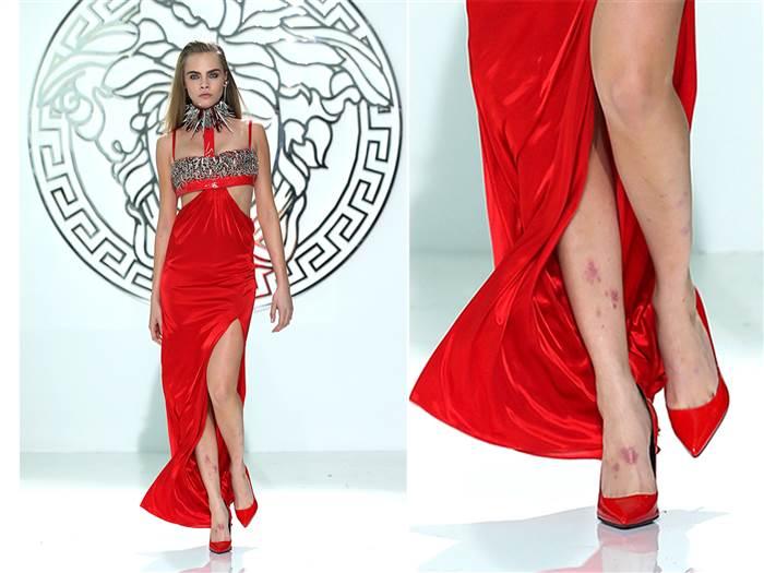 Serganti psoriaze prisipažino ir žymus modelis Cara Delevigne.