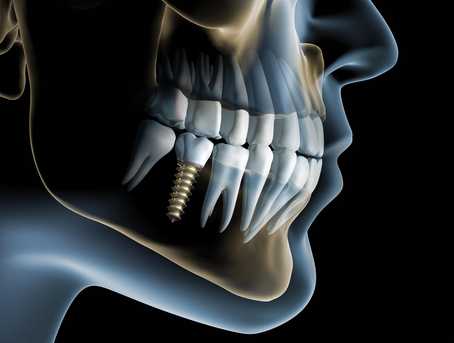 Taip atrodo dantų implantai.